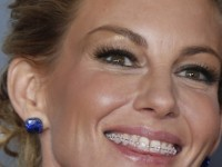 5 Celebrities Who Had Braces As An Adult